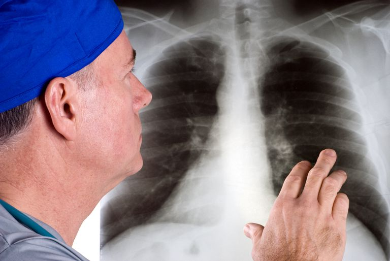 doctor looking at a chest x-ray as a step in diagnosing lung cancer