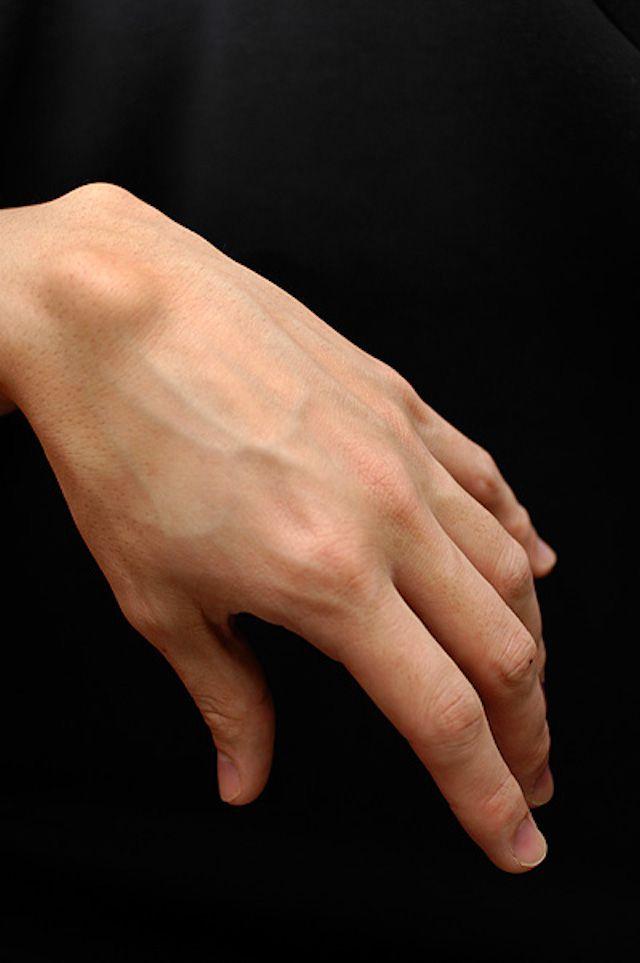 Wrist Ganglion Cyst
