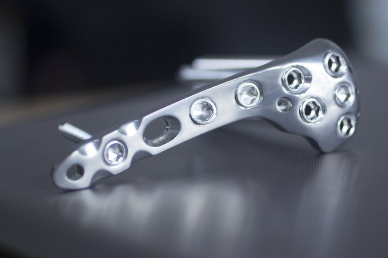 Allergy to Metal Orthopedic Implants