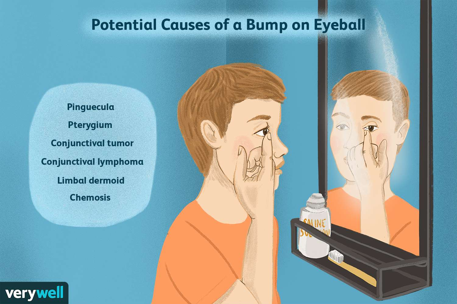 Potential Causes of a Bump on Eyeball
