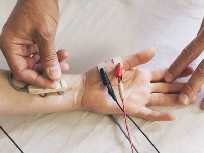 Chiropractor performing a Median NCV electrotherapy