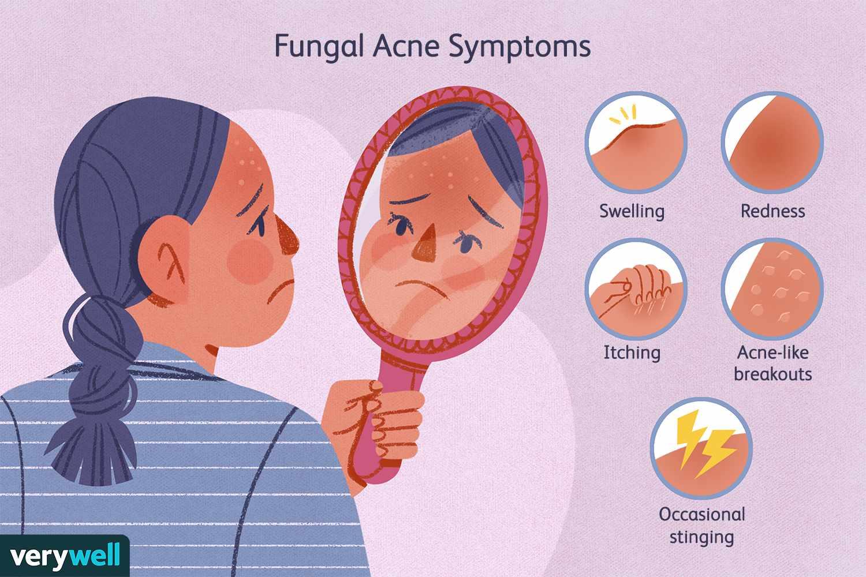 Fungal Acne Symptoms