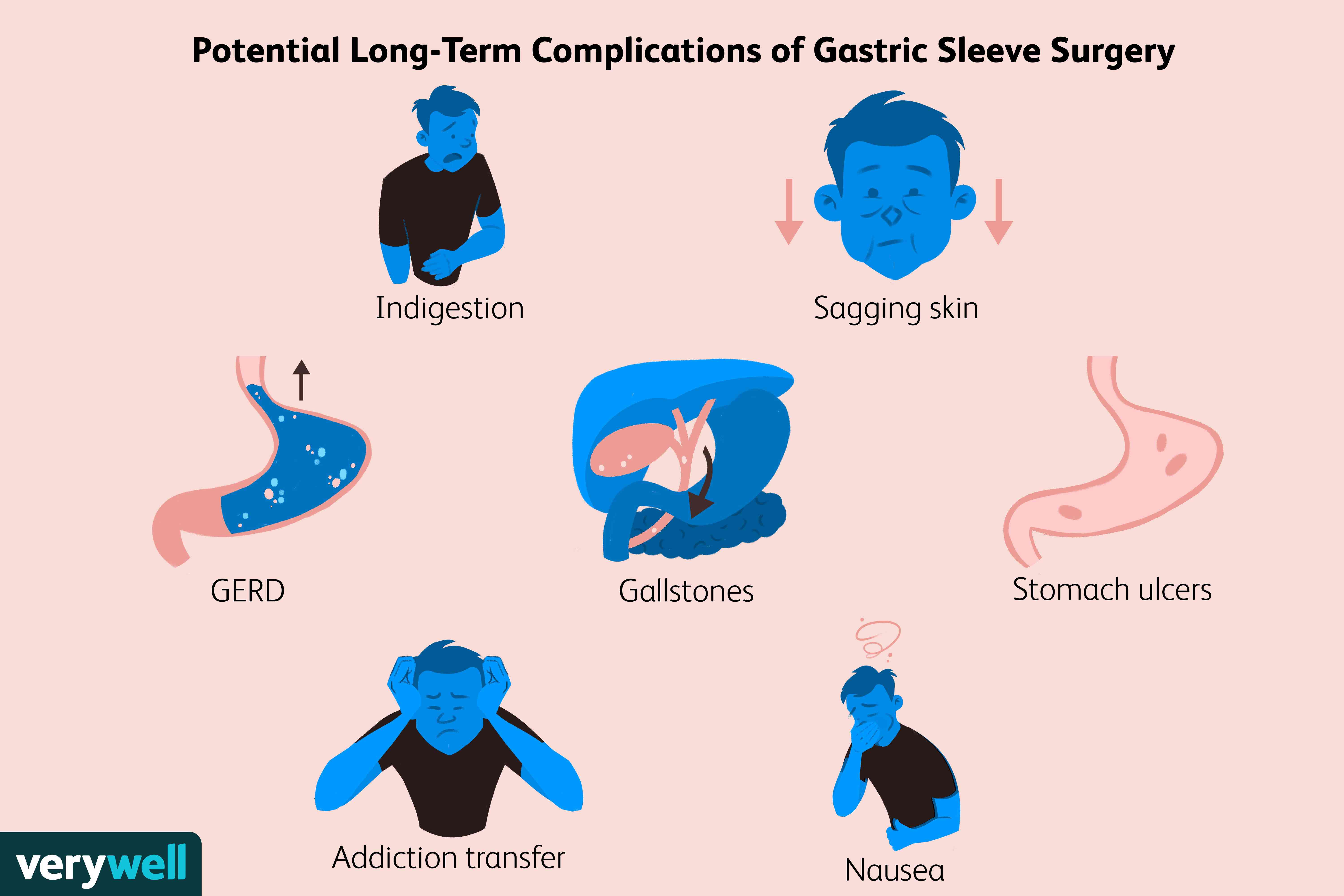 potential complications of gastric sleeve surgery