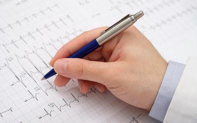 Doctor writing on electrocardiogram