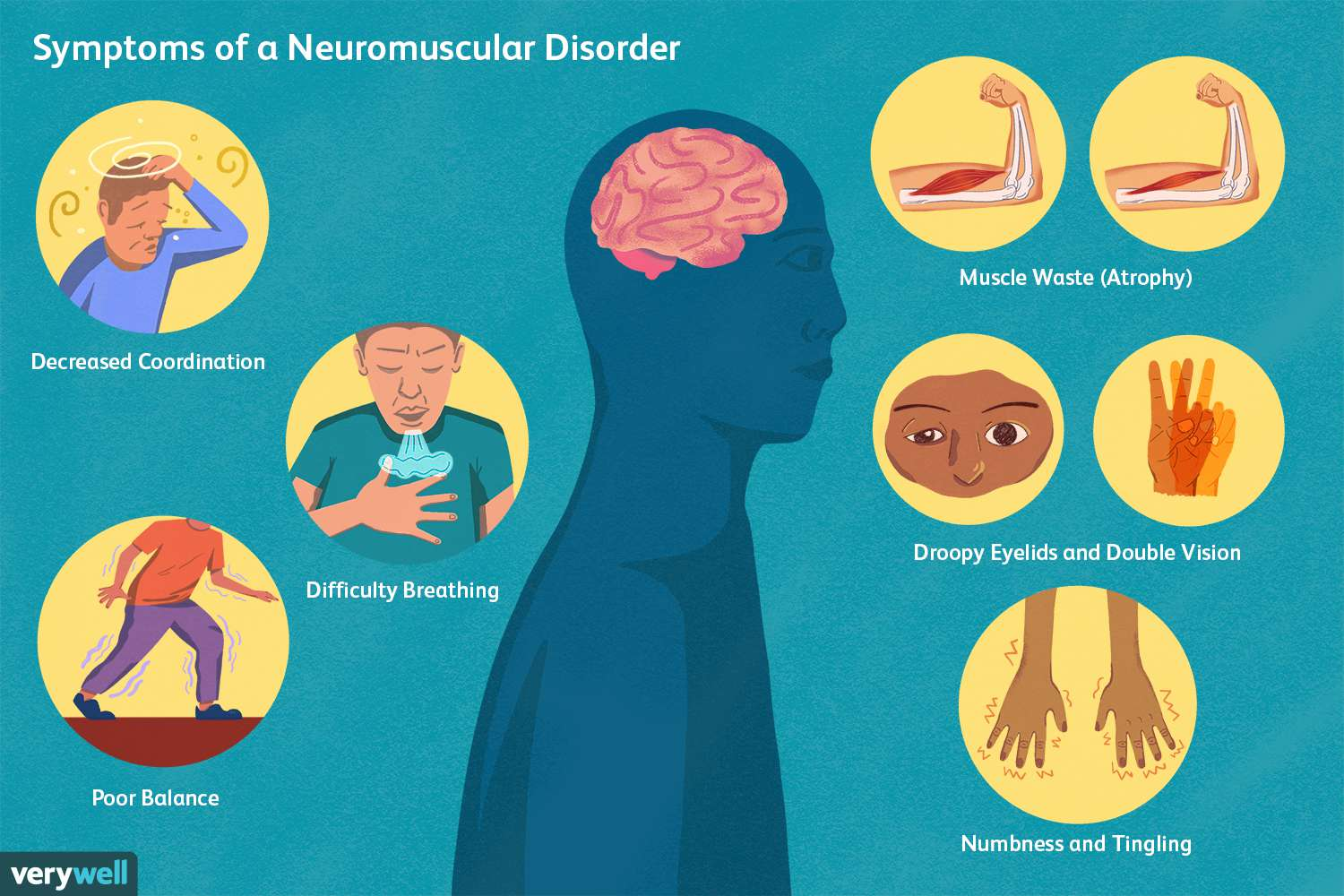 Symptoms of a Neuromuscular Disorder