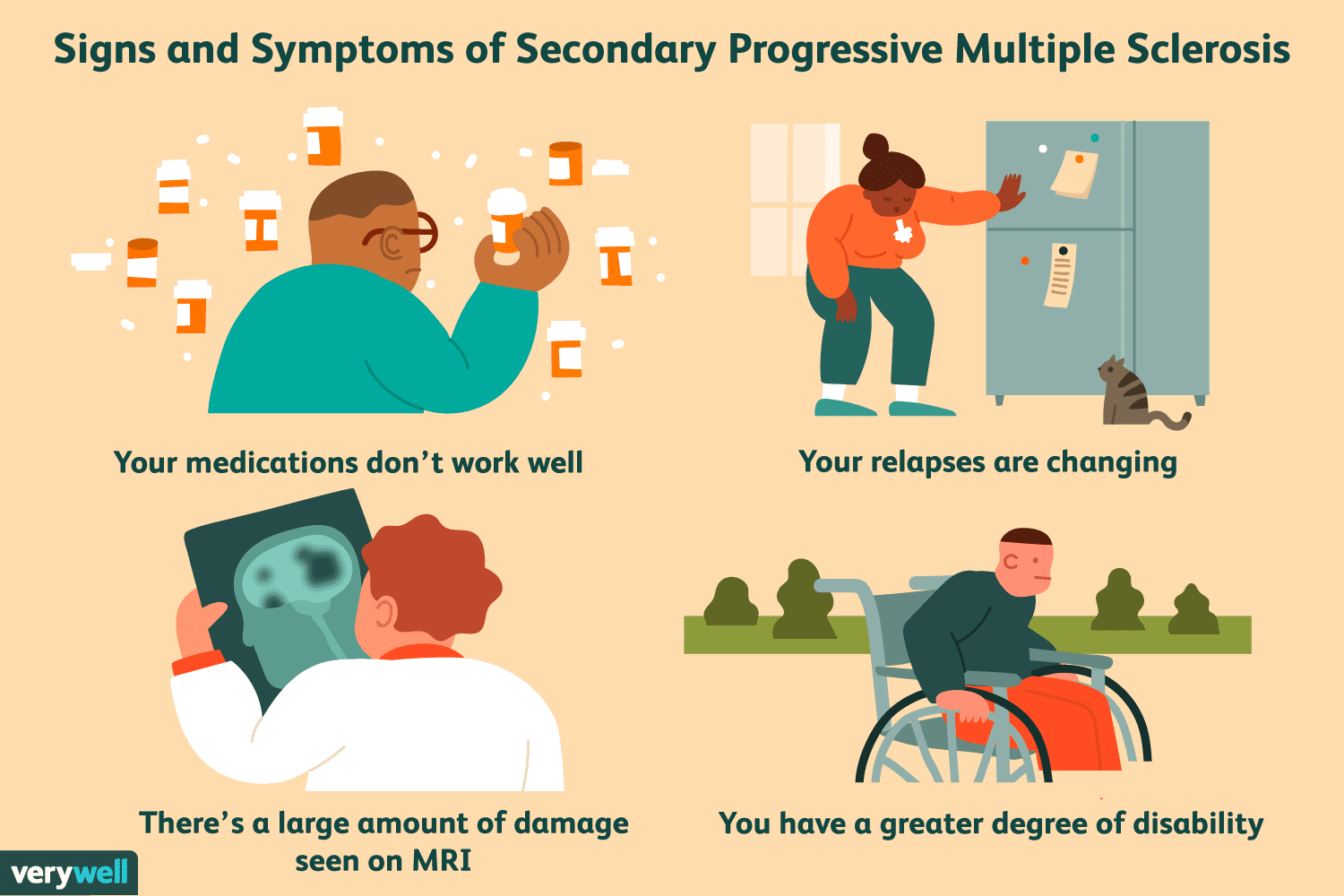 Signs and Symptoms of Secondary Progressive Multiple Sclerosis