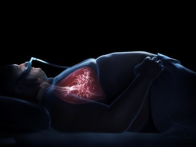 CPAP treatment can help to resolve respiratory acidosis in someone with sleep apnea contributing to abnormal breathing and carbon dioxide retention