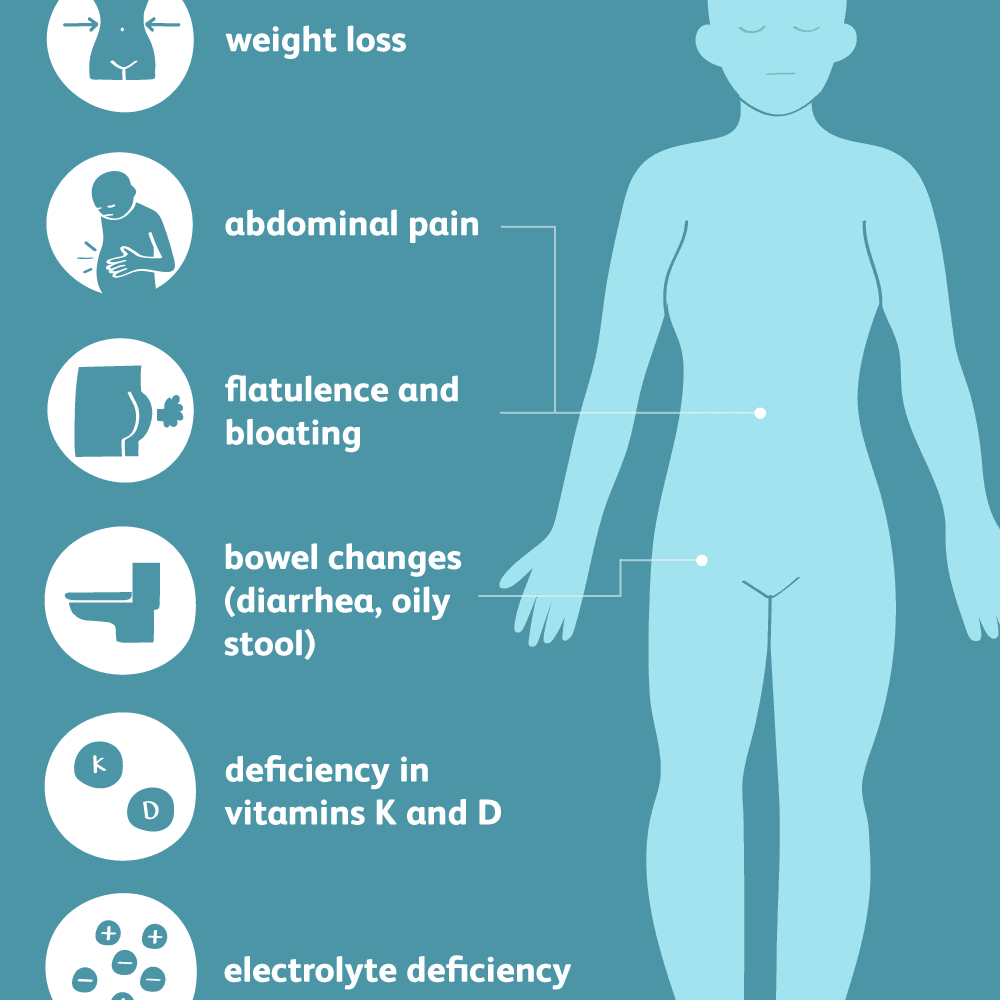 Pancreatic cancer poop - Poop pierdere în greutate