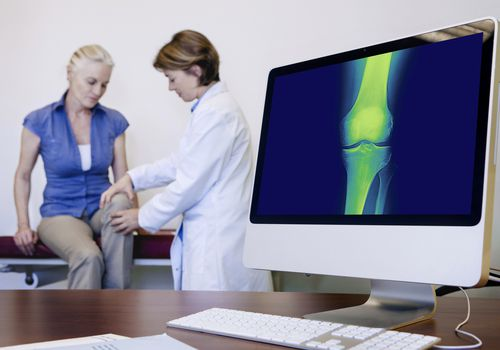 Exam for tricompartmental knee osteoarthritis.