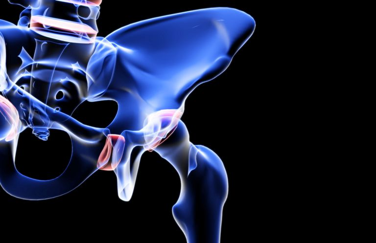 Hip Fracture Dangers and Mortality Rates