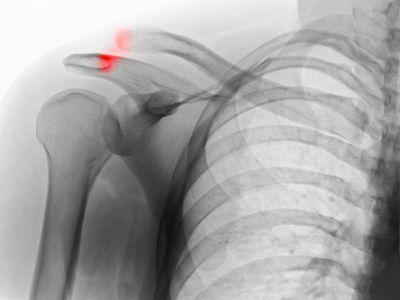 shoulder separation xray image