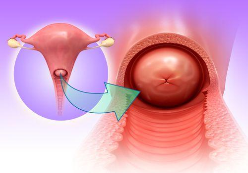 cervix, illustration