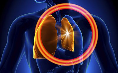 What Is a Chest Tube and When Is One Used? Unclog Kitchen Sink Orange Lungs on