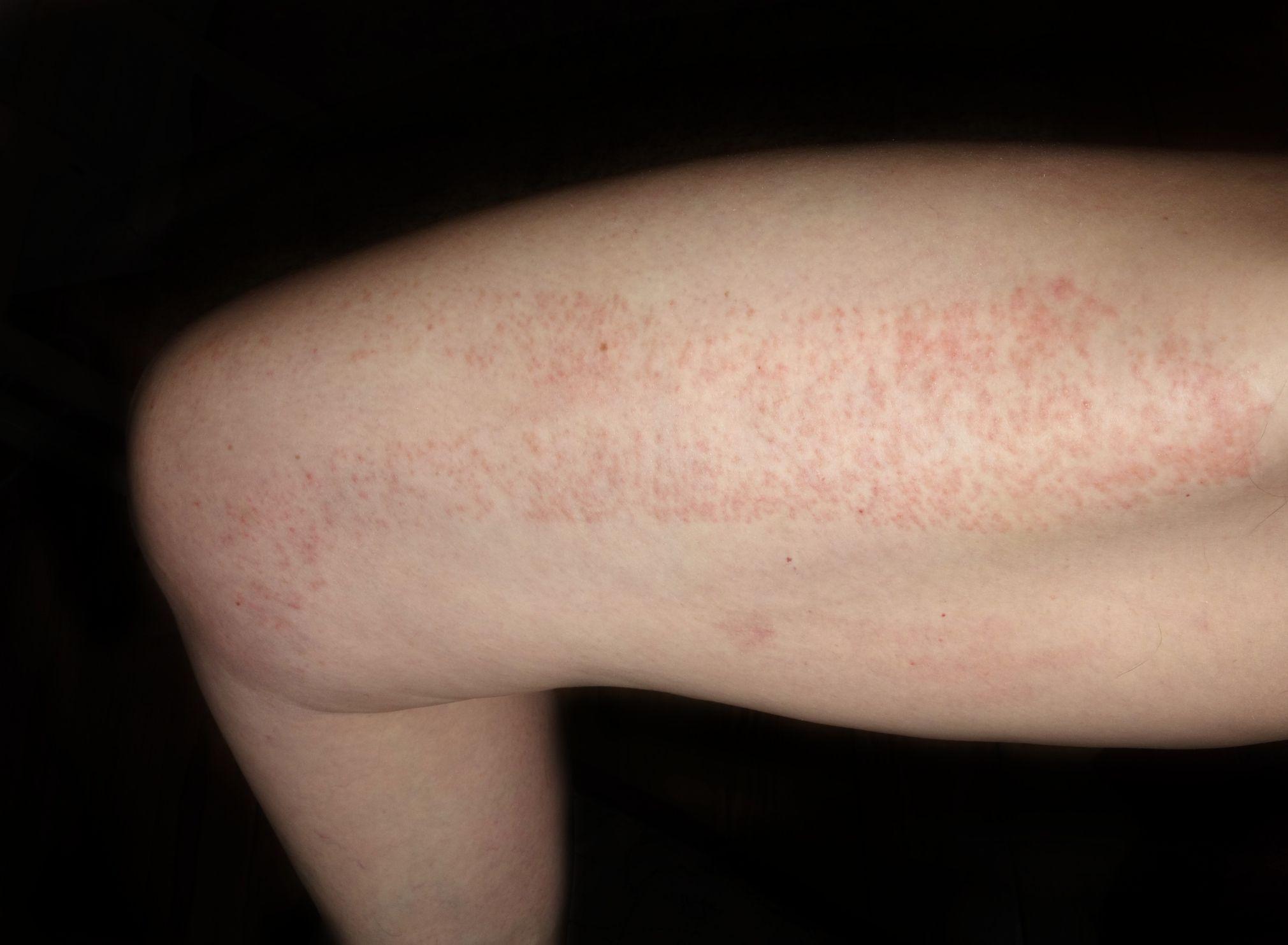 drug allergic reaction on leg