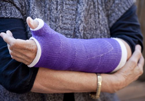 Woman with arm in a cast
