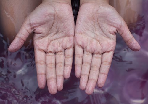 Woman in water showing the palms of her wrinkled hands