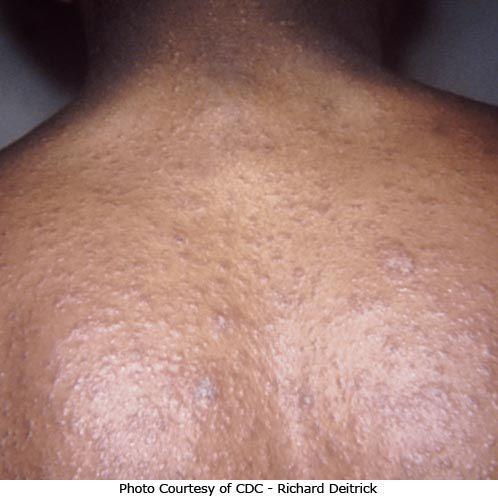 Generalized pityriasis rosea rash