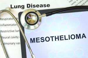 mesothelioma name by stethoscope