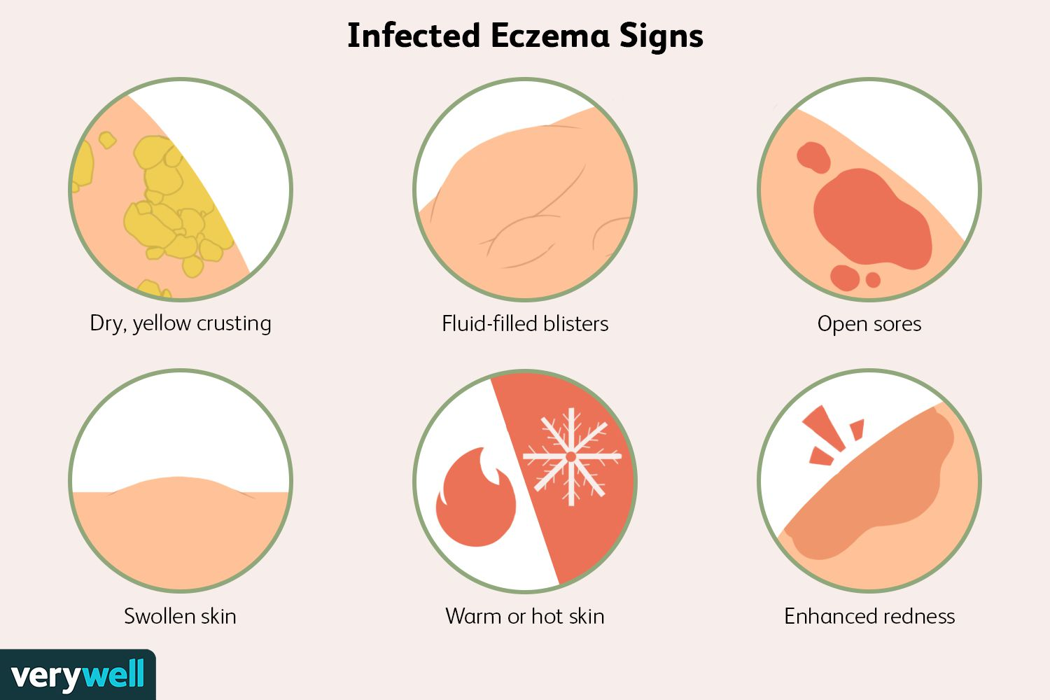 Infected Eczema Signs