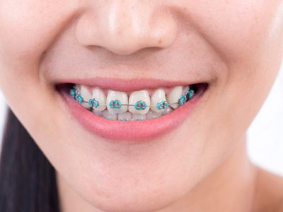 close-up of young woman with rubber bands on braces