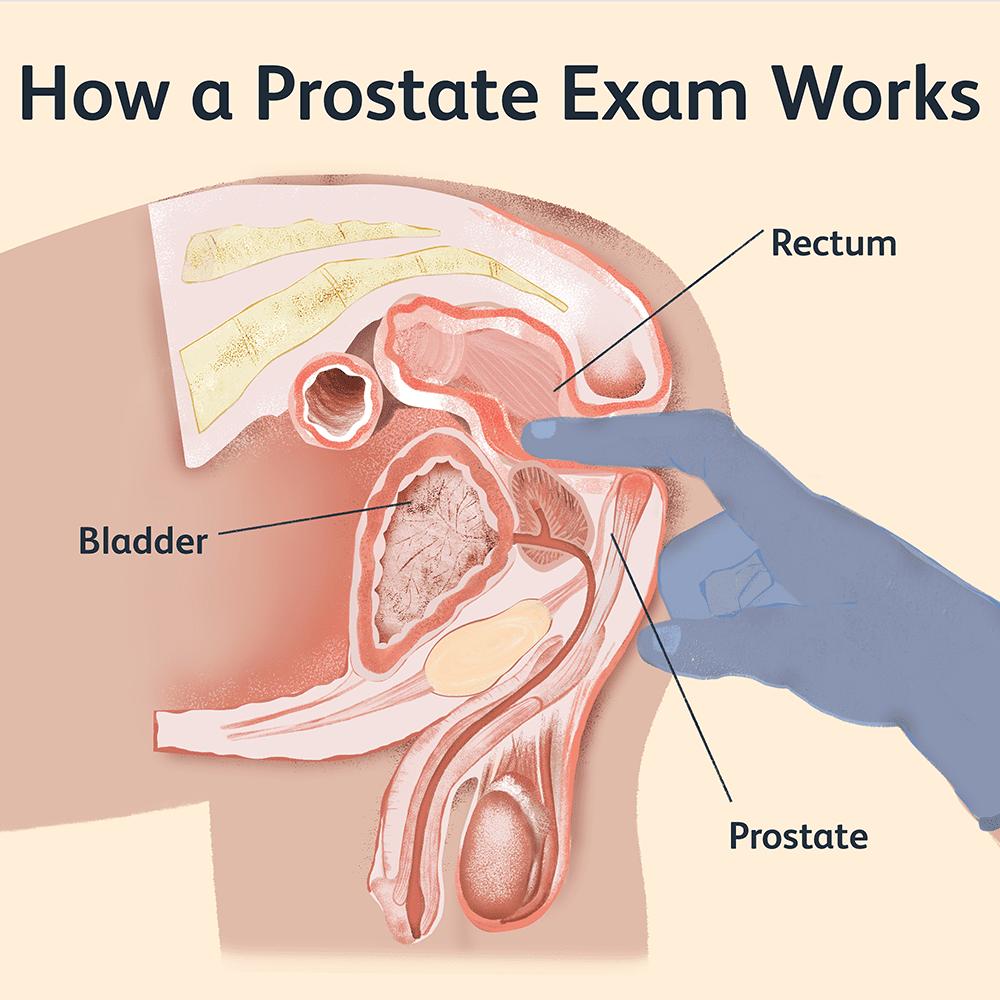 Cink prostatitis Vélemények)