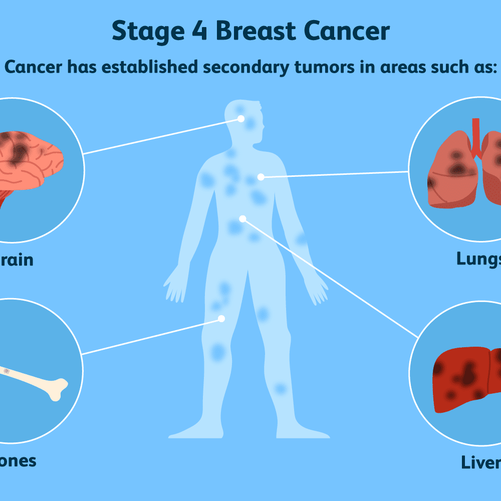 Breast Cancer Spread To The Brain Symptoms And Treatments
