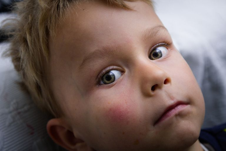 A little boy with a flushed face