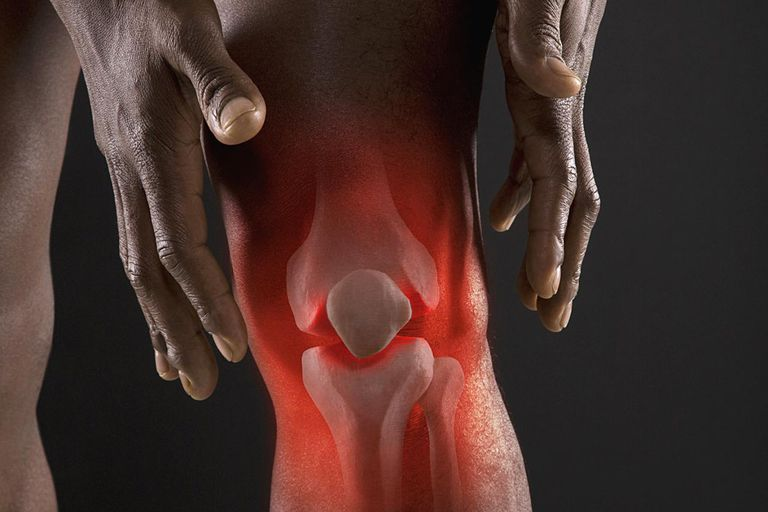 Joints of man's knee
