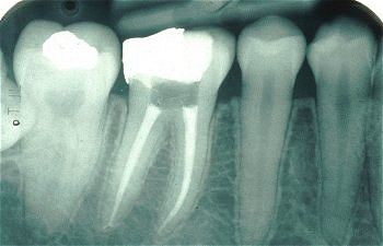 xray of completed Root Canal