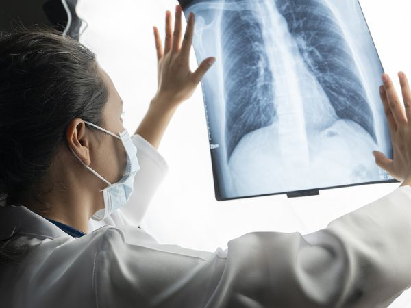 Asian female doctors speculate on X-ray images from virus corona-infected lung patients. - stock photo
