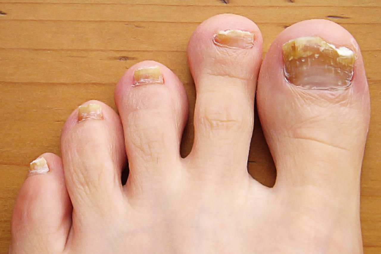 Common Toenail Problem Symptoms Causes And Treatment