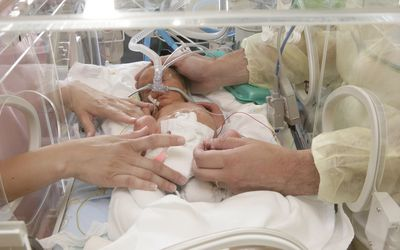 Patent Ductus Arteriosus (PDA) in Premature Babies