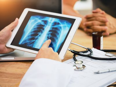 A physician examines a lung X-ray on an iPad