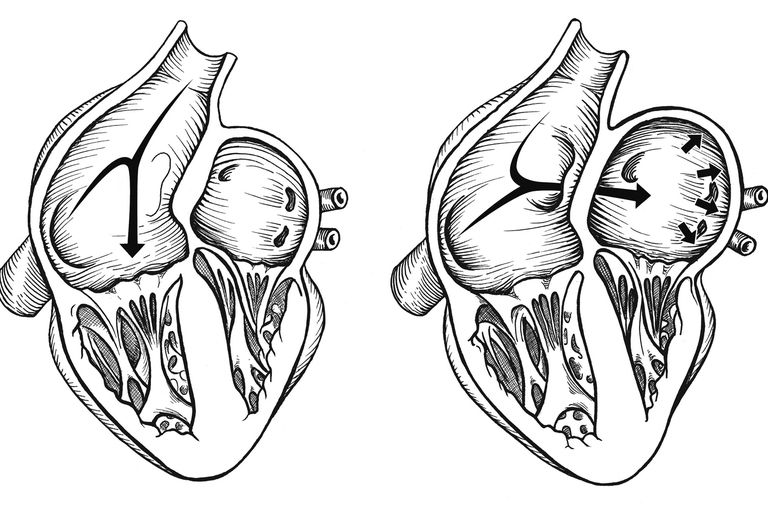A diagram showing a patent foramen ovale, right.