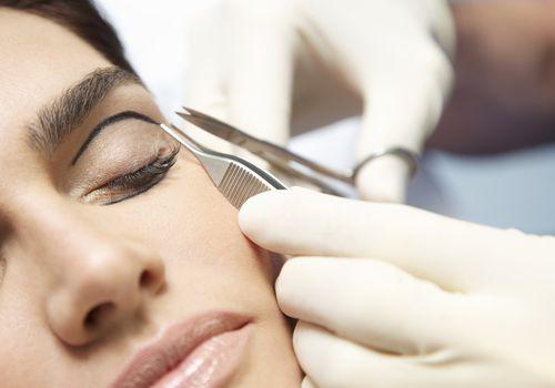 eyelid surgery surgery