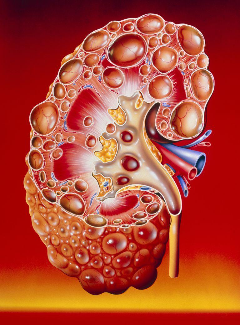 Apparent symptoms of Polycystic Kidney Infection (PKD)