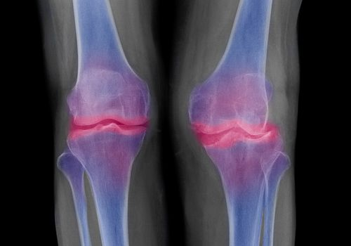 Bone spur may develop in joints damaged by arthritis.