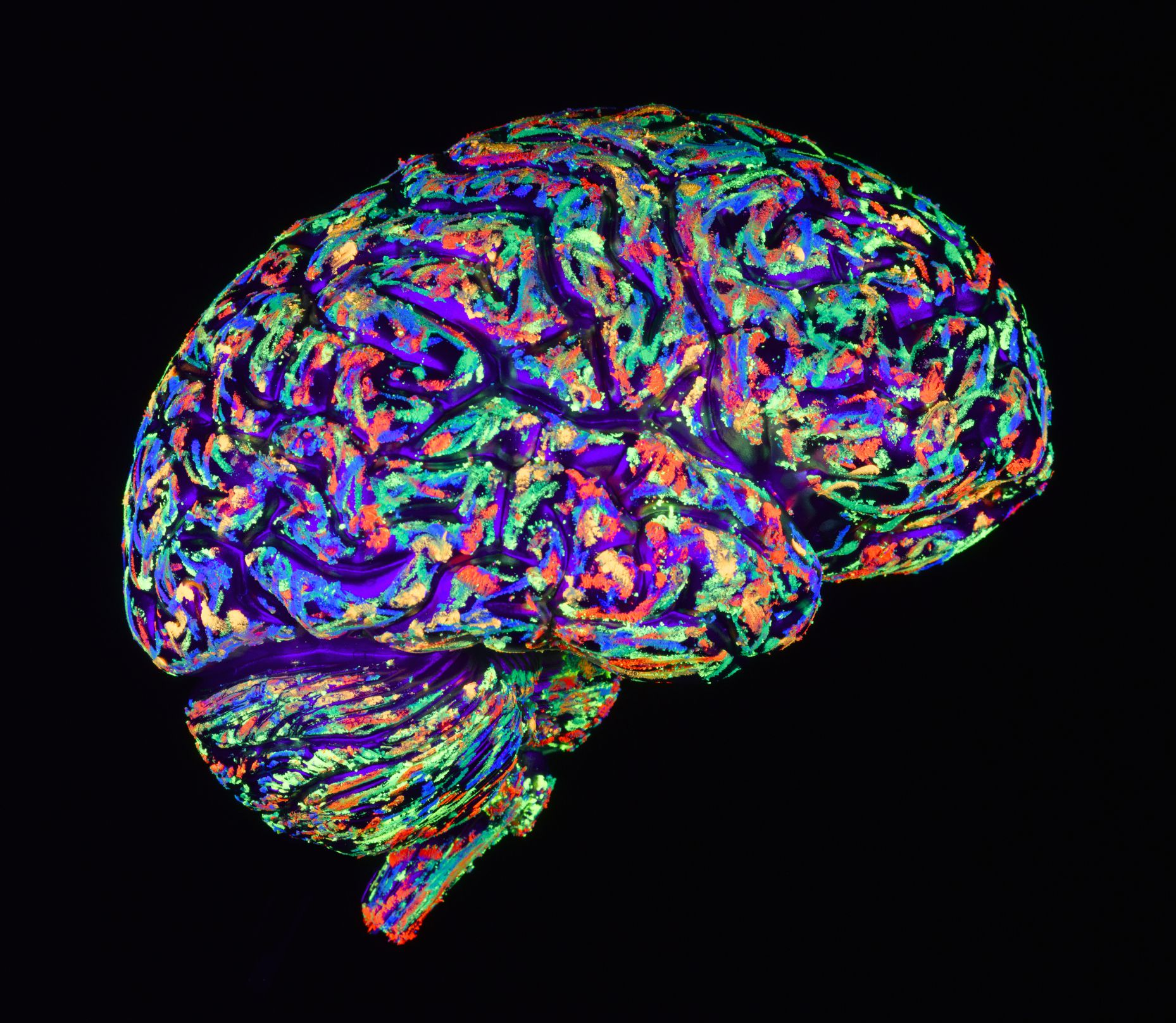 Differences Between Alzheimer's and Vascular Dementia