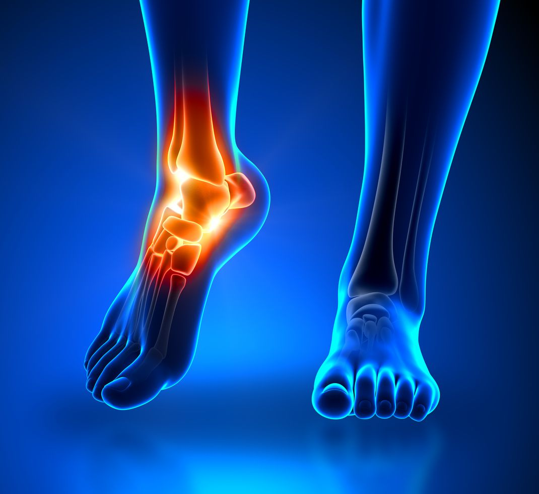 Are Nerve Problems Causing Your Foot Pain?