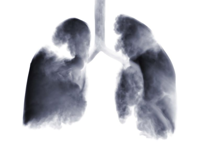 imaging scan of lungs showing lung cancer