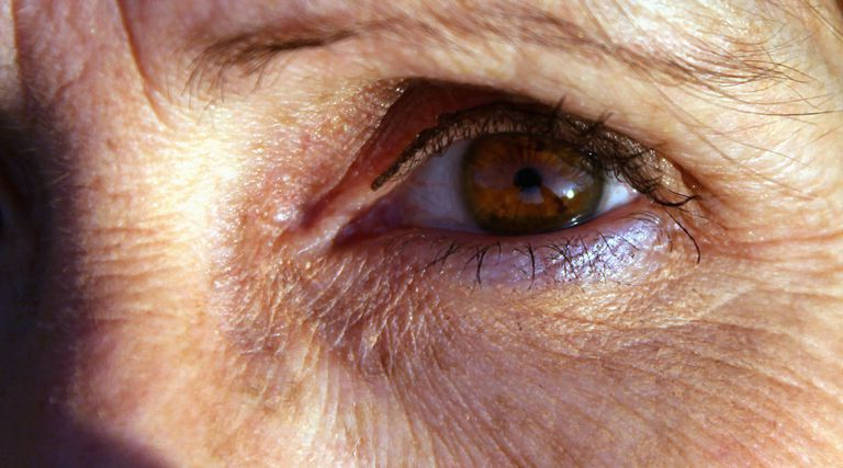 Chronological Aging and the Causes of Wrinkles