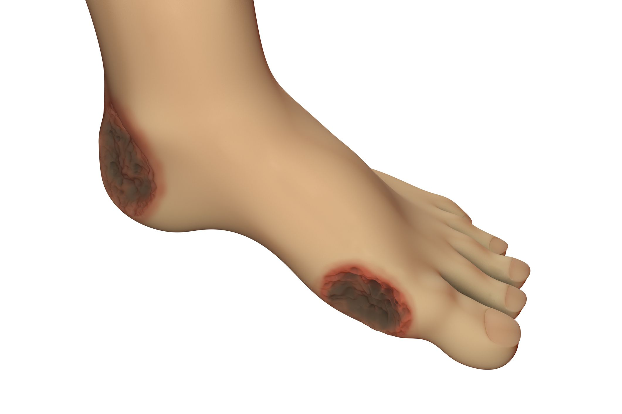 Skin Ulcers: Symptoms, Causes, Diagnosis, and Treatment