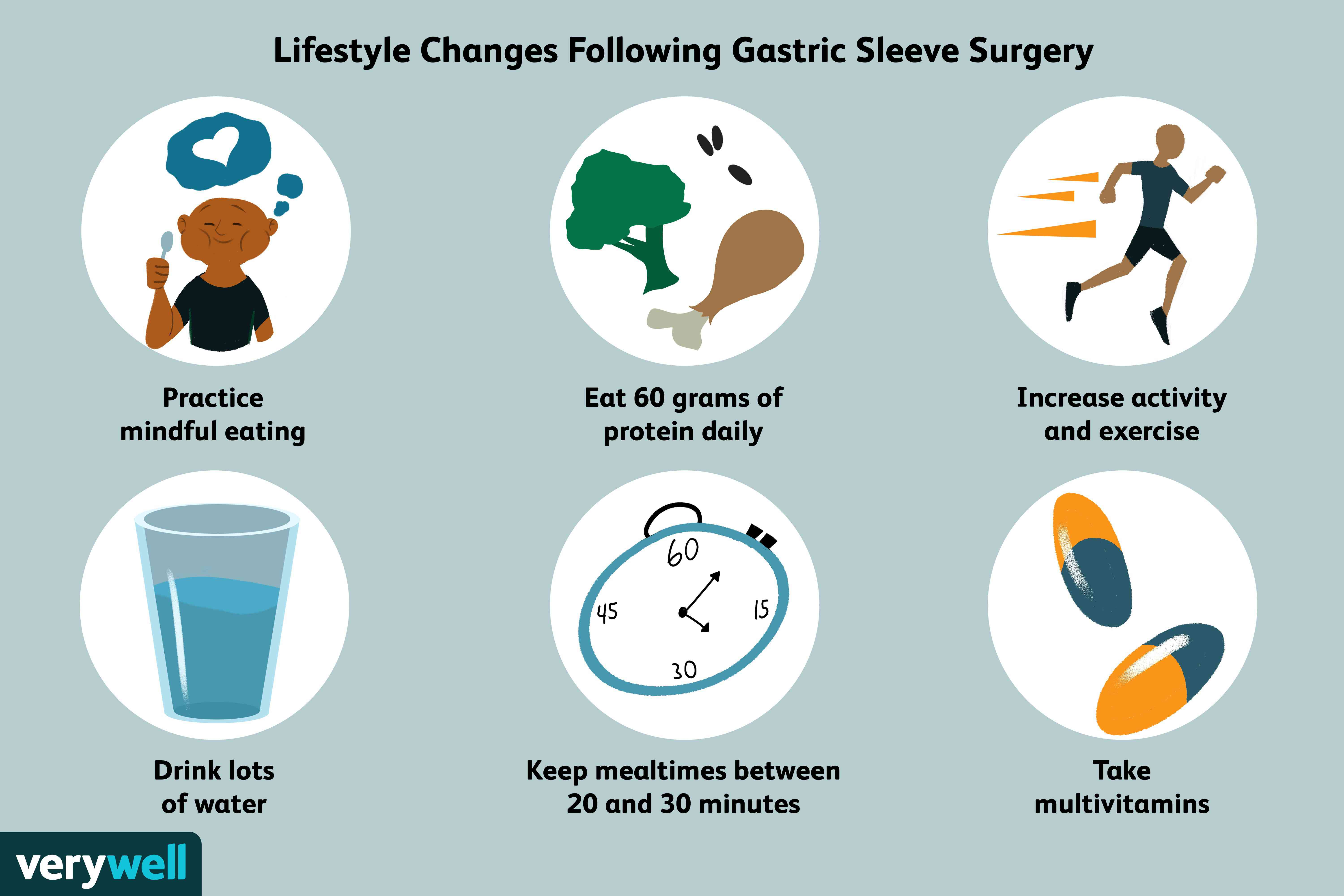 Lifestyle Changes Following Gastric Sleeve Surgery