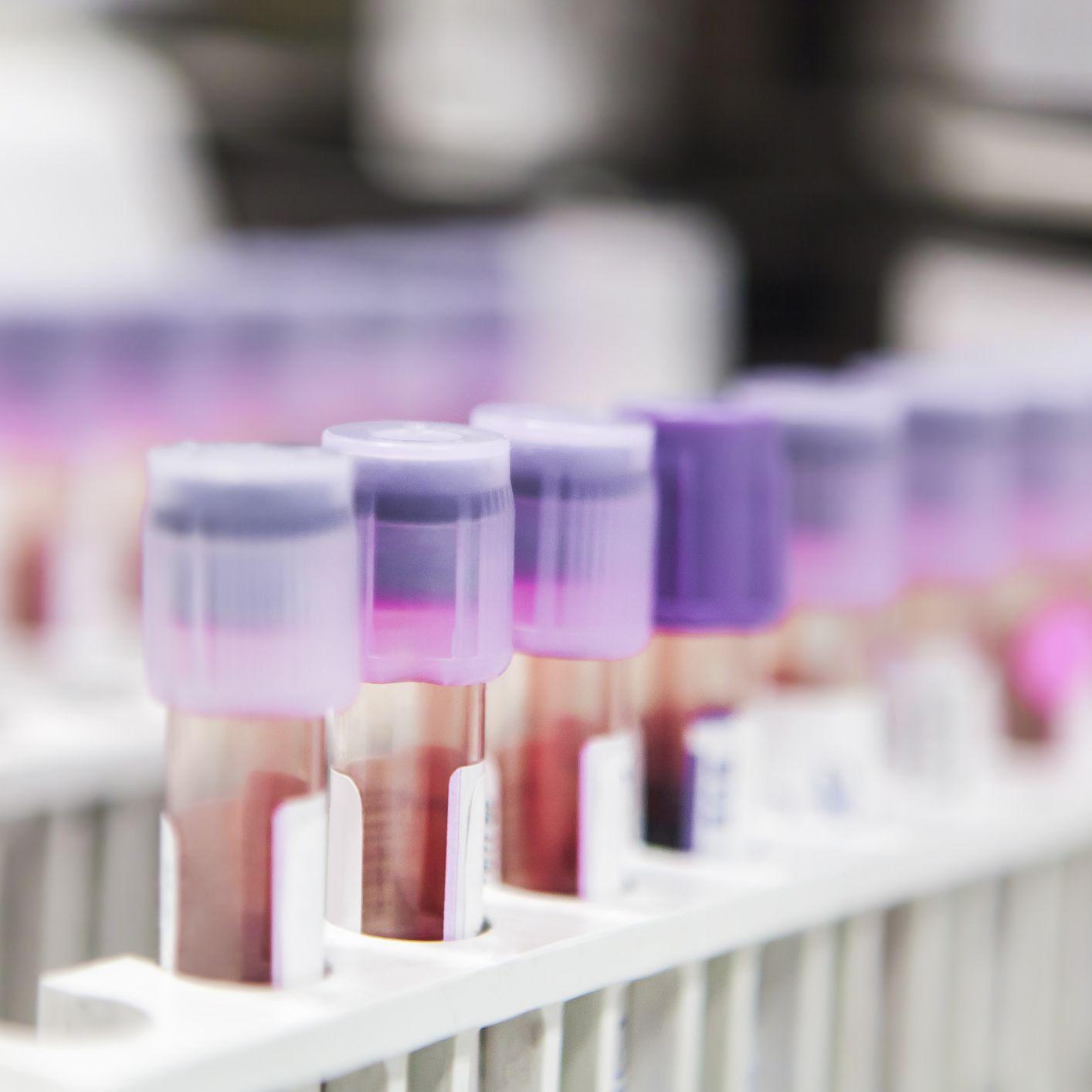 Breast Cancer Tumor-Marker Tests