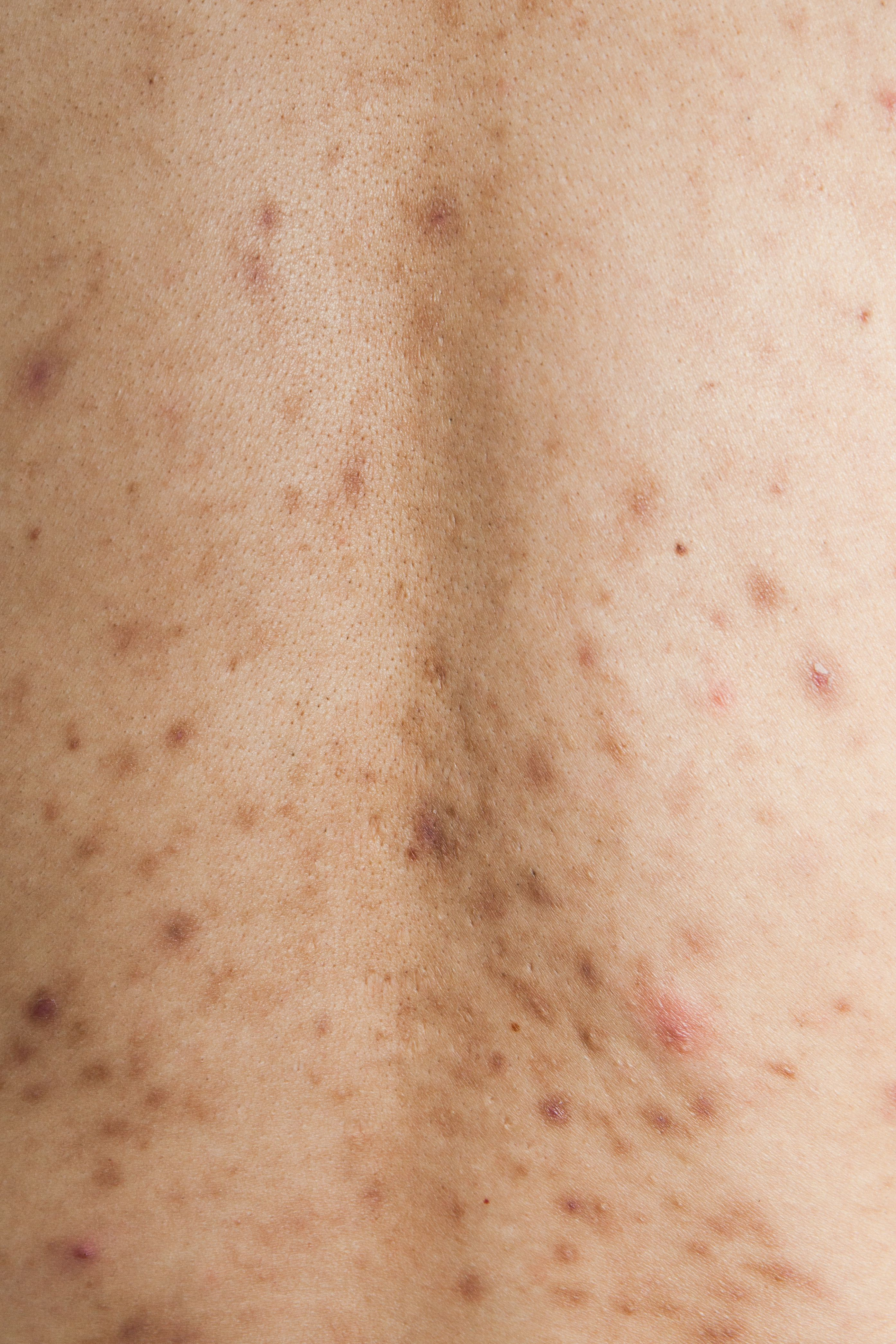 Post-Inflammatory Hyperpigmentation and Acne