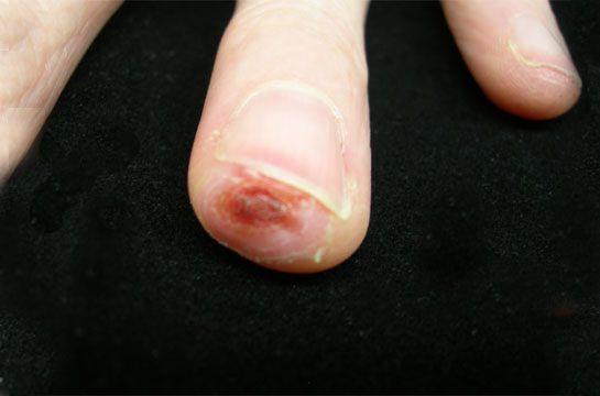 Fingertip Injury - The Injury