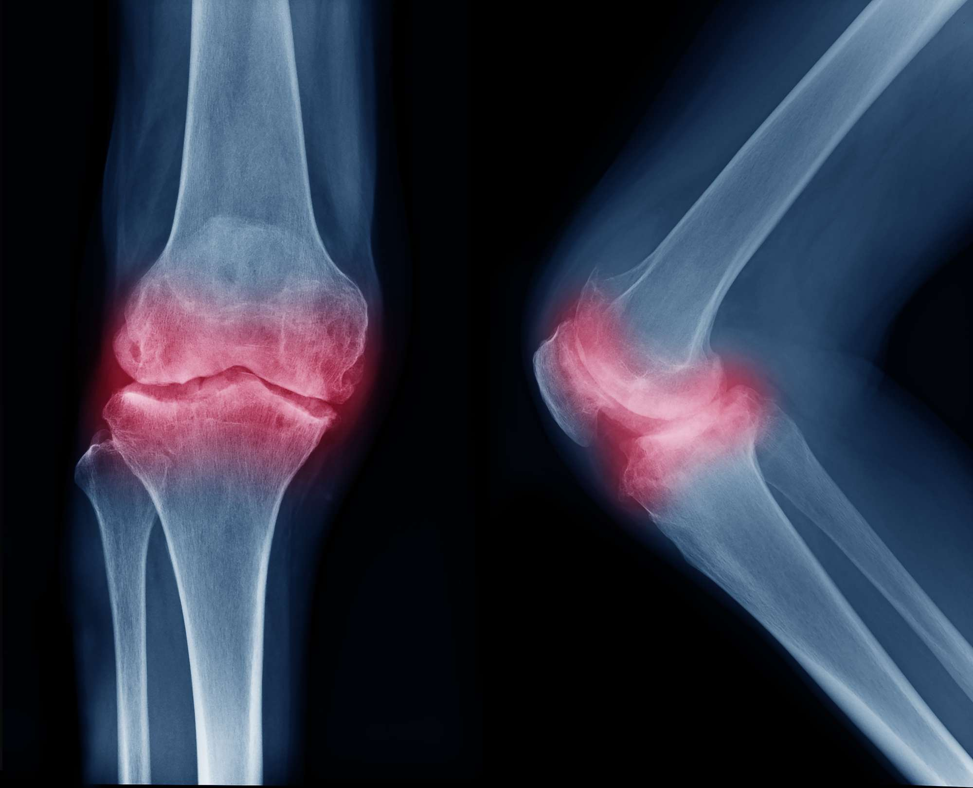 Film x-ray both knees show narrow joint space, osteophyte, subchondral sclerosis