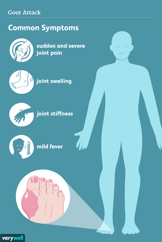 gout attack symptoms