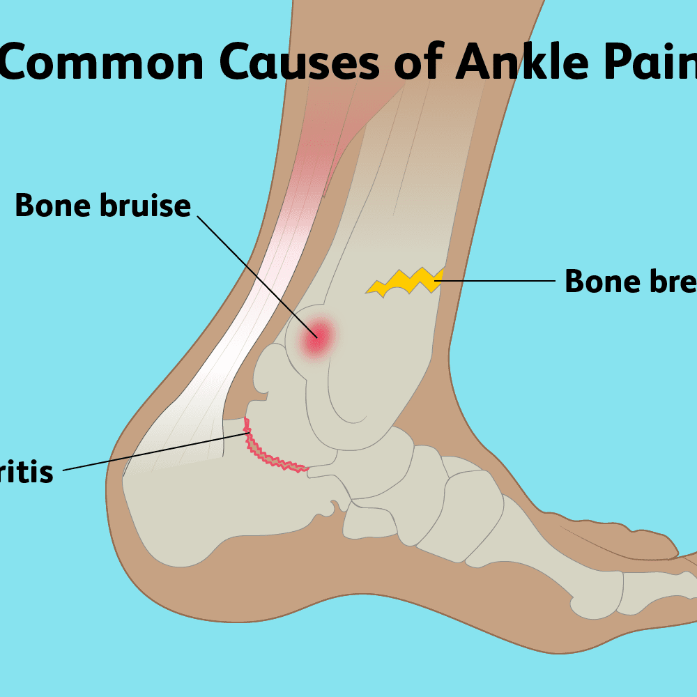 Everything You Need To Know About Ankle Pain