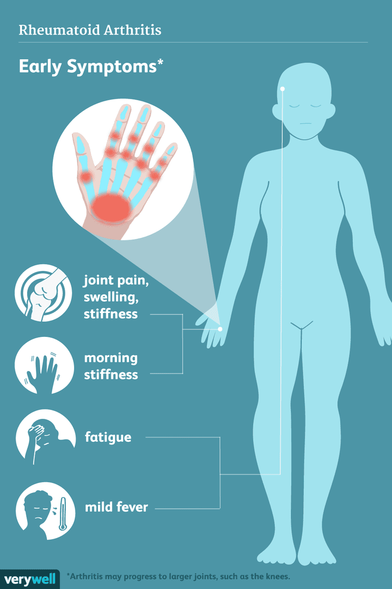 rheumatoid arthritis symptoms
